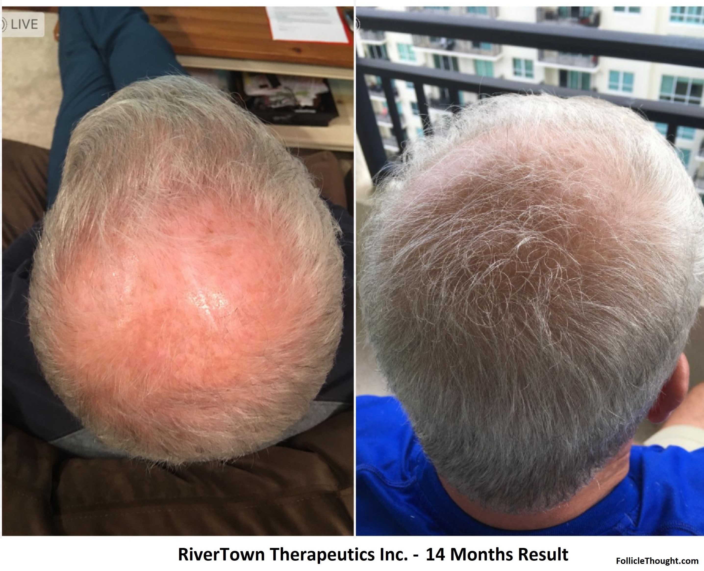 RiverTown: More Results | Follicle Thought